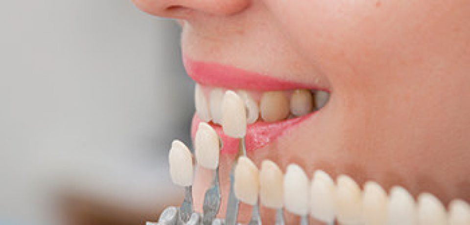 Going For Cosmetic Dentistry?